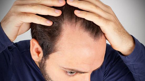 Ortica, come usarla se hai la forfora o perdi i capelli